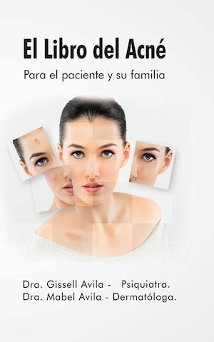 El libro del acné af Gissell Ávila