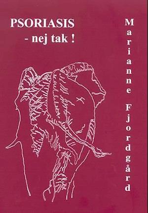 Bog, hæftet Psoriasis - nej tak! af Marianne Fjordgård