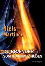 Du brænder som ild under huden af Niels Martinov