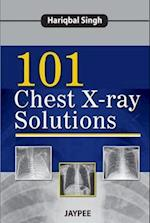 101 Chest X-Ray Solutions af Hariqbal Singh
