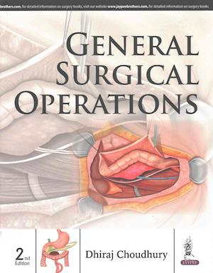 General Surgical Operations