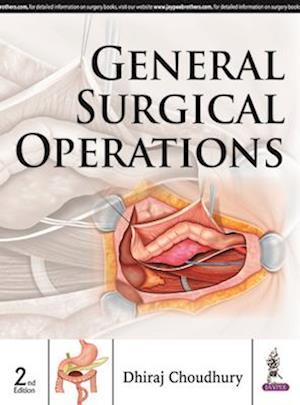 Bog, hardback General Surgical Operations af Dhiraj Choudhury