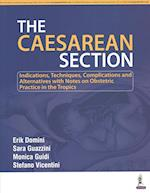 The Caesarean Section