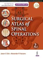 Surgical Atlas of Spinal Operations