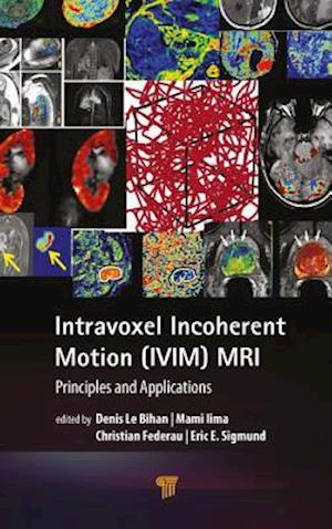 Intravoxel Incoherent Motion (IVIM) MRI