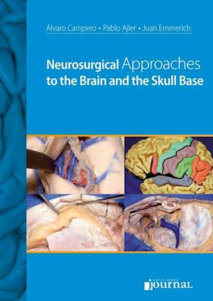 Neurosurgical Approaches to the Brain and the Skull Base af Álvaro Campero, Pablo Ajler, Juan Emmerich