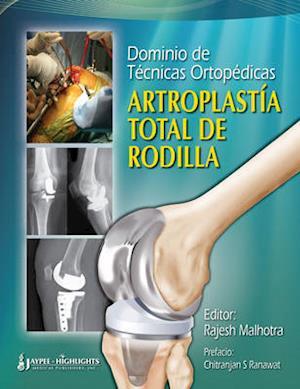 Dominio de Tecnicas Ortopedicas: Artroplastia Total de Rodilla