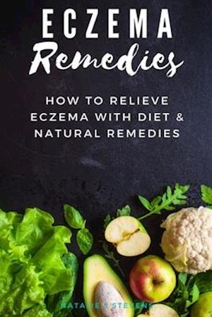 Eczema Remedies: How to Relieve Eczema With Diet & Natural Remedies