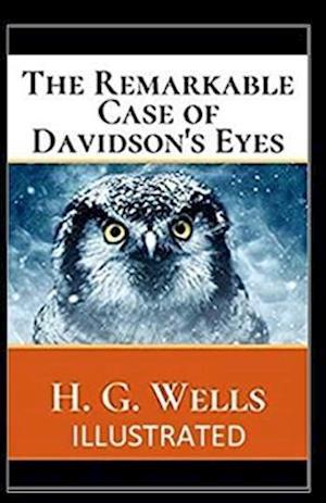 The Remarkable Case of Davidsons Eyes Illustrated